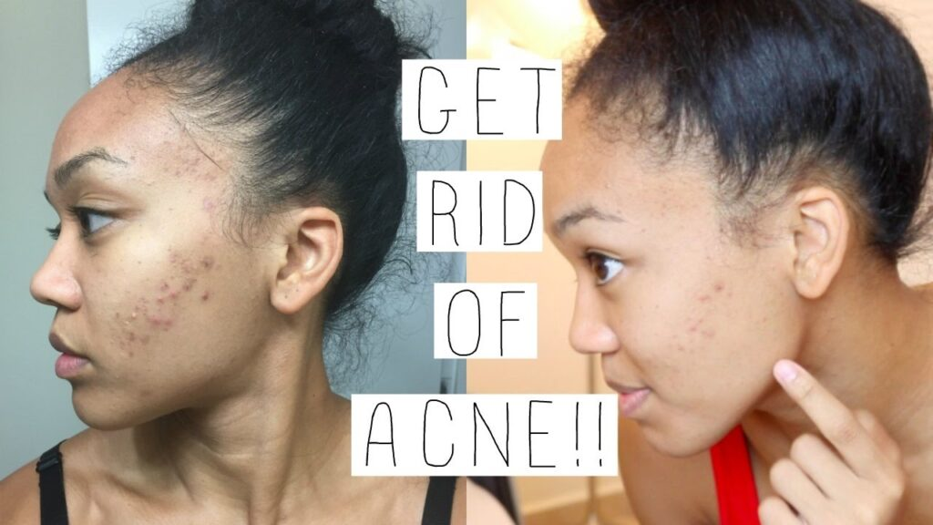 Goodbye to acne