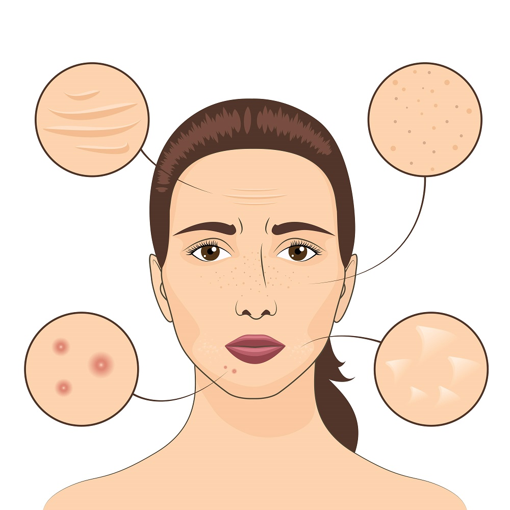 Skin Pigmentation and other problems