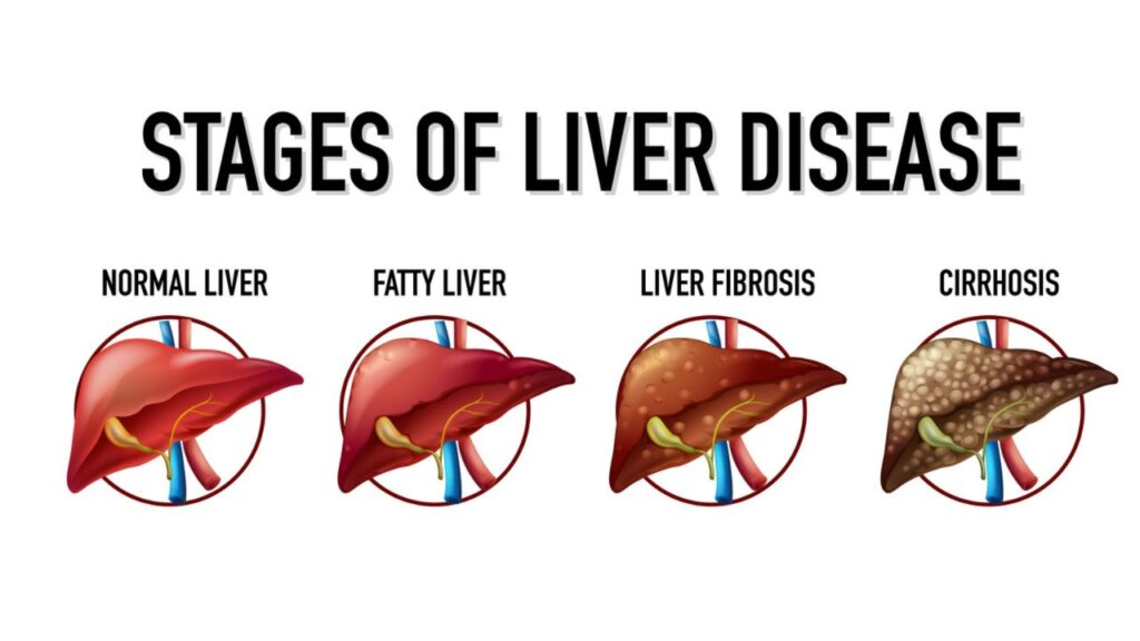 Stages of liver disease लिवर की दवा पतंजलि